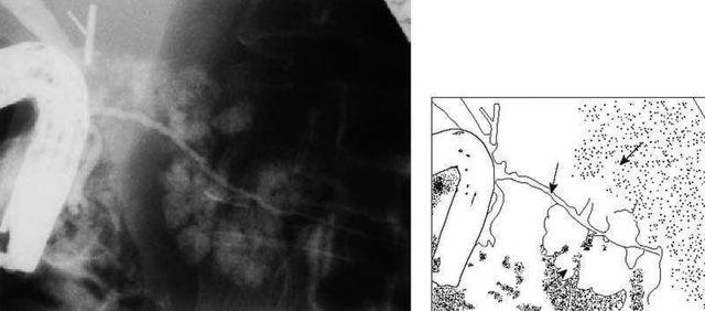 Эрпхг (эндоскопическая ретроградная панкреатохолангиография)