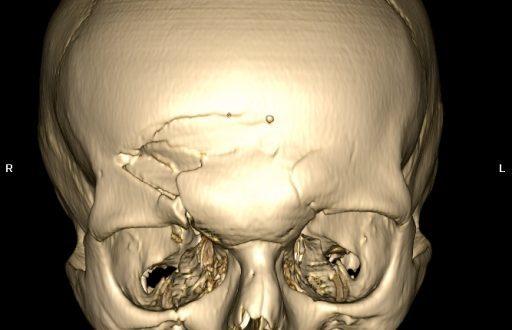 Кт (компьютерная томография) костей черепа