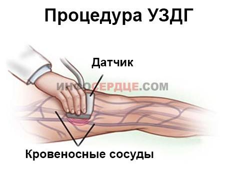 УЗДГ (допплерография) сосудов нижних конечностей