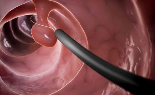 Колоноскопия и фиброколоноскопия – в чем отличия?