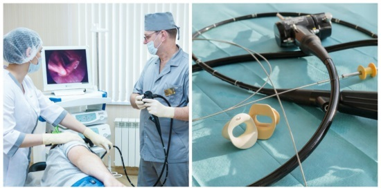 ФГДС с биопсией: показания, проведение, результаты