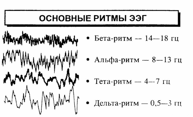 Что показывает ЭЭГ при обследовании головного мозга?
