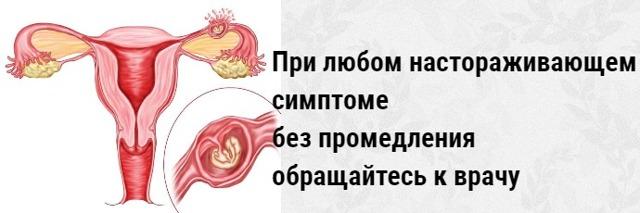 Видно ли на УЗИ внематочную беременность?