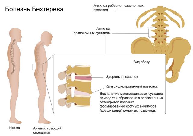 Подготовка к рентгену (рентгенографии): правила для пациента