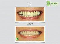 Трехмерное (3d) рентгенологическое исследование зубов