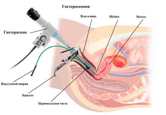 Гистероскопия и гистерорезектоскопия: чем отличаются, что лучше?