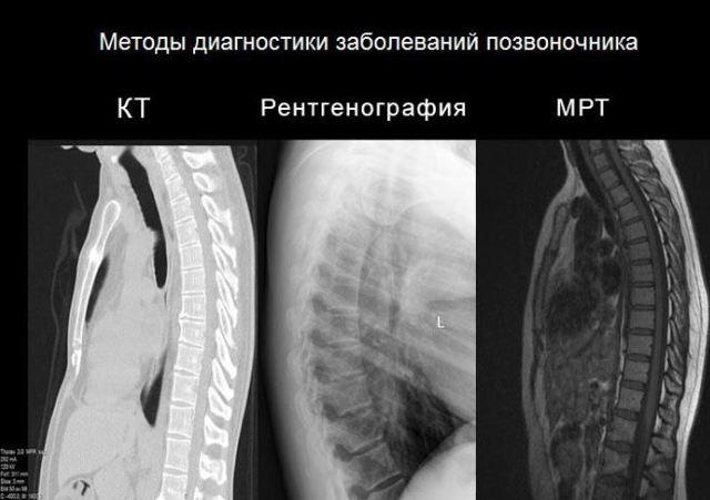 МРТ грудного отдела позвоночника: что покажет процедура?