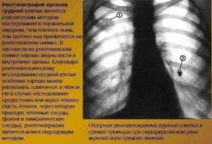 Очаги уплотнения на КТ легких - насколько это опасно?