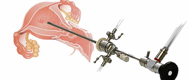 Гистероскопия с биопсией эндометрия – что это?