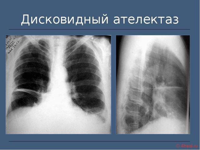 Ателектаз легкого на рентгенограмме