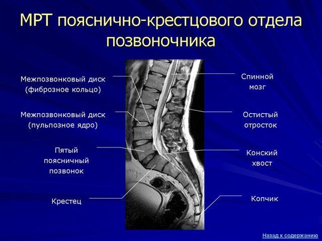 КТ копчика - особенности и подготовка