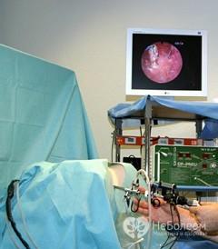 Минигистероскопия: показания, проведение, осложнения
