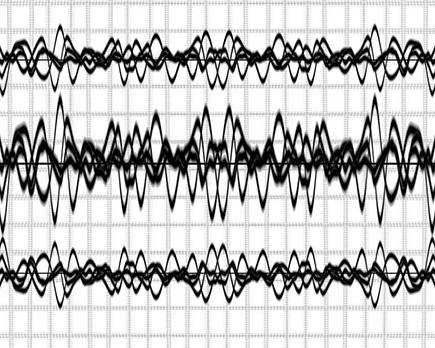 ЭЭГ мониторинг (видеомониторинг) – что это такое, как проводят?