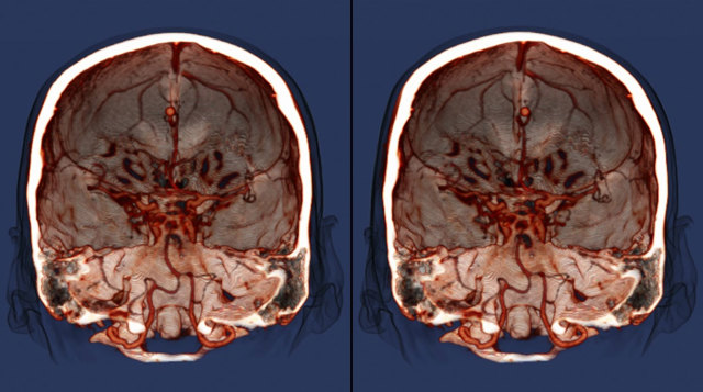 МСКТ ангиография сосудов головного мозга