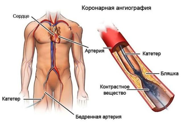 Коронарная ангиография – что это такое?