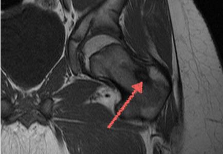 МРТ ноги: бедра, голени - что показывает?