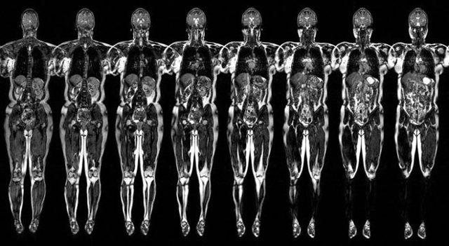 МРТ полностью всего организма: можно ли?