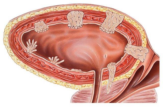 УЗИ мочеполовой системы: виды, показания, подготовка, проведение, результаты