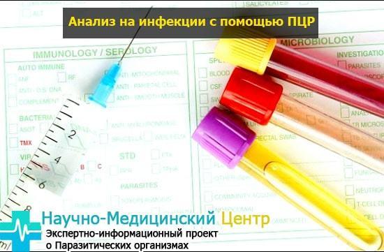 Бактериоскопия мазка: показания, результаты и их расшифровка