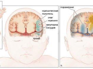 УЗИ головного мозга у грудничка – что показывает в норме?