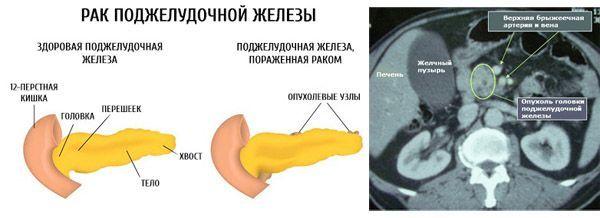 Компьютерная томография (КТ) поджелудочной железы