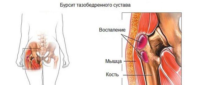 Артроскопия тазобедренного сустава – что это такое?