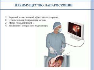 Лапароскопия – что это такое за операция, как делают, плюсы и минусы