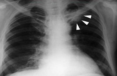 Метастазы в легких на рентгене – как выглядят?