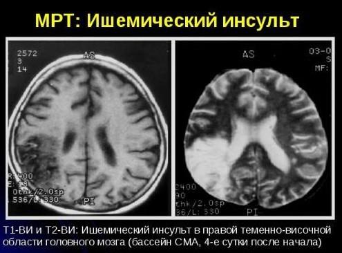 Мрт головного мозга: что показывает обследование?