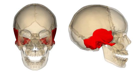 КТ височных костей: показания, проведение, результат и альтернатива