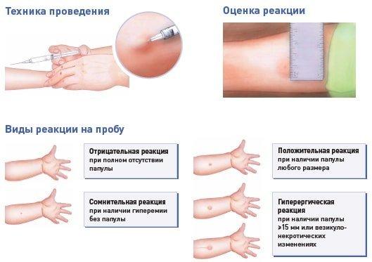 Доза облучения при рентгене для человека