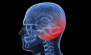 МРТ костей черепа