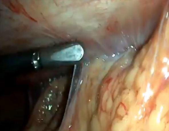 Адгезиолизис при лапароскопии – что это?