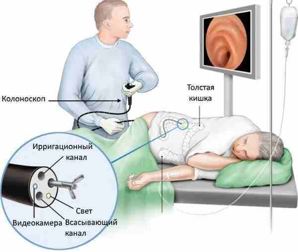 Колоноскопия под наркозом или без – что лучше?