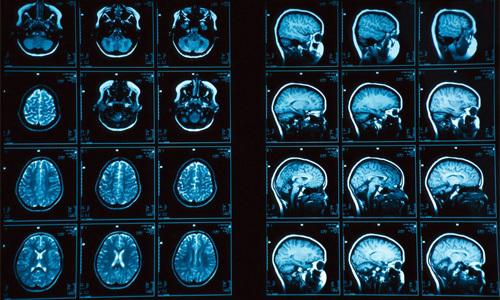 МРТ при рассеянном склерозе: диагноз, признаки
