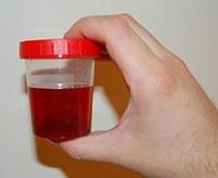 Цистоскопия у мужчин: подготовка мочевого пузыря, проведение, результаты