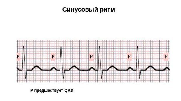 Кардиограмма сердца здорового человека