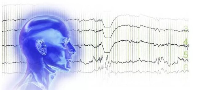 Эпиактивность на ЭЭГ у ребенка – что делать?