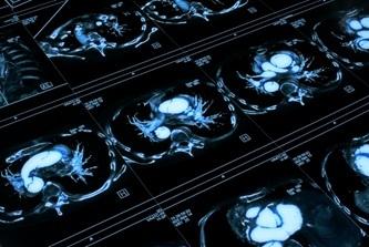 КТ (компьютерная томография) органов грудной клетки