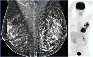 КТ (компьютерная томография) молочных желез