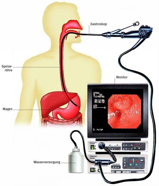Как часто можно делать ФГДС желудка?
