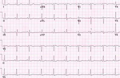 Плохая кардиограмма сердца: что делать?
