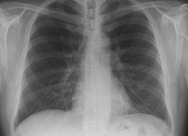 Можно ли делать флюорографию и рентген в один день?