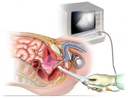Как проверить кишечник без колоноскопии: альтернативные методики