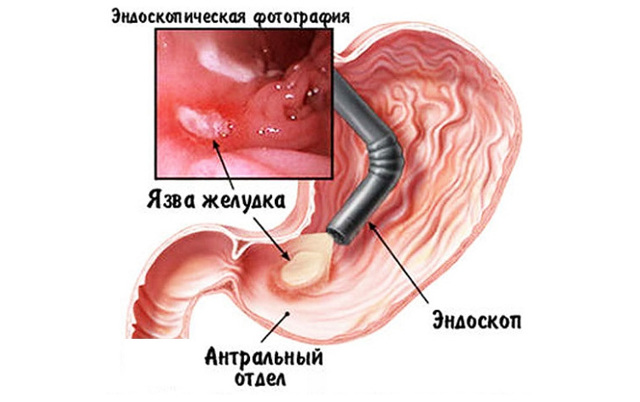 Что нельзя делать перед гастроскопией желудка: запреты и последствия