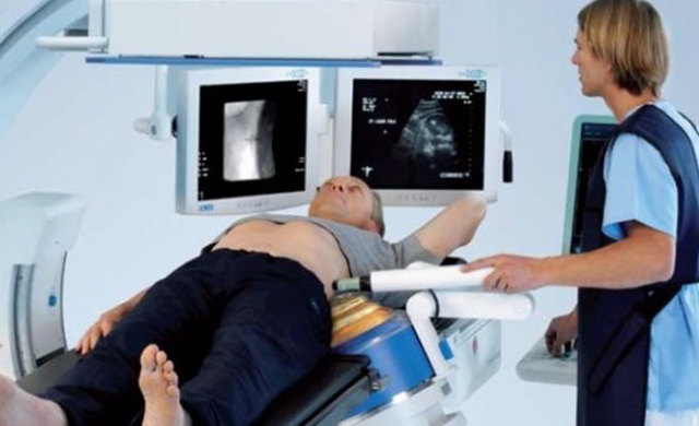 Обзорная рентгенография органов брюшной полости