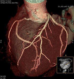 МСКТ сердца (коронарография) с контрастированием
