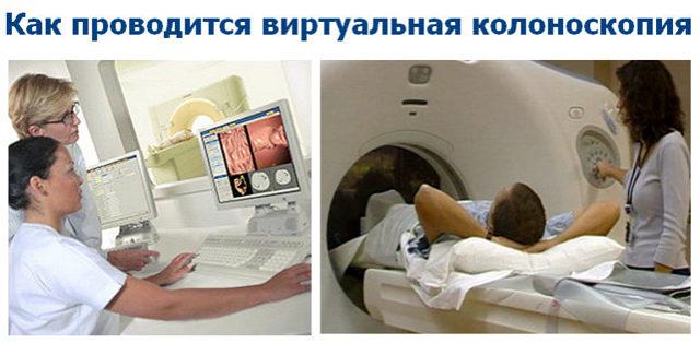 Виртуальная колоноскопия кишечника – что это такое?
