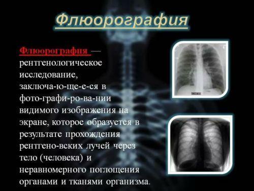 Рентгенография и рентгеноскопия: в чем отличие?
