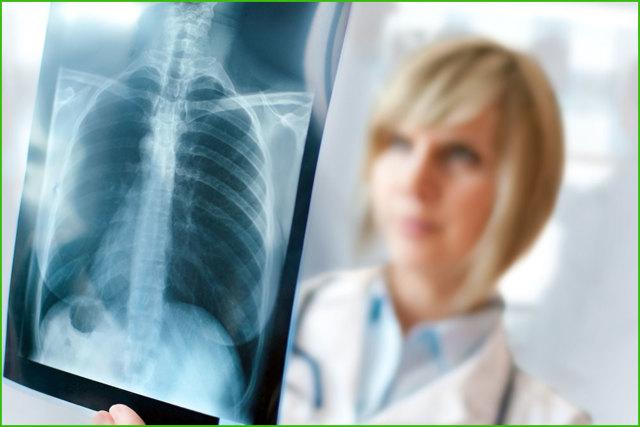 Где можно сделать рентген?